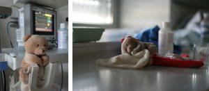 eclampsie-prematurite